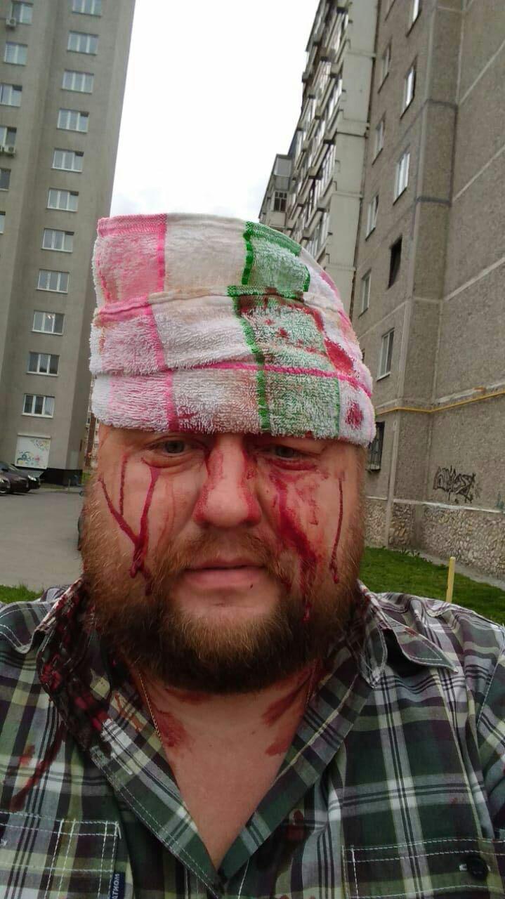 Директору «Средураллифт» переломали пальцы и разбили голову во дворе дома