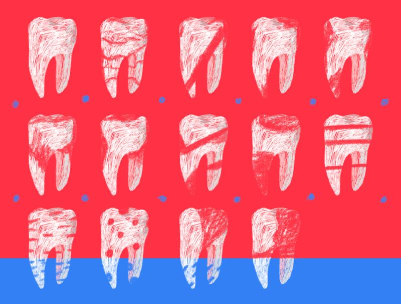 накладки на зубы виниры и люминиры