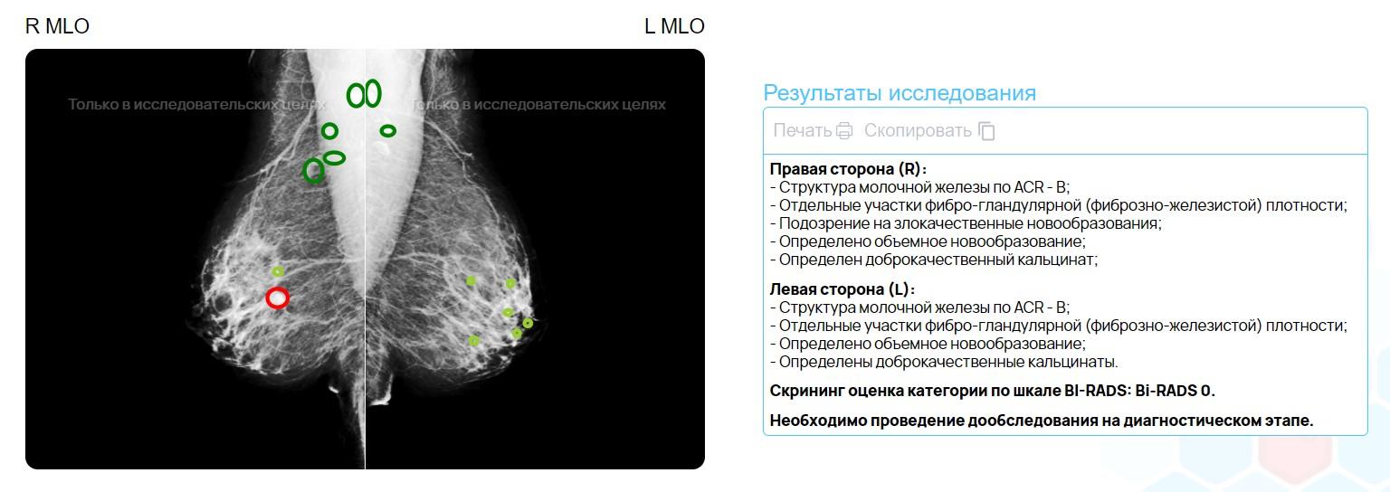 Пример снимка и описания, где ИИ выделил маркером новообразования