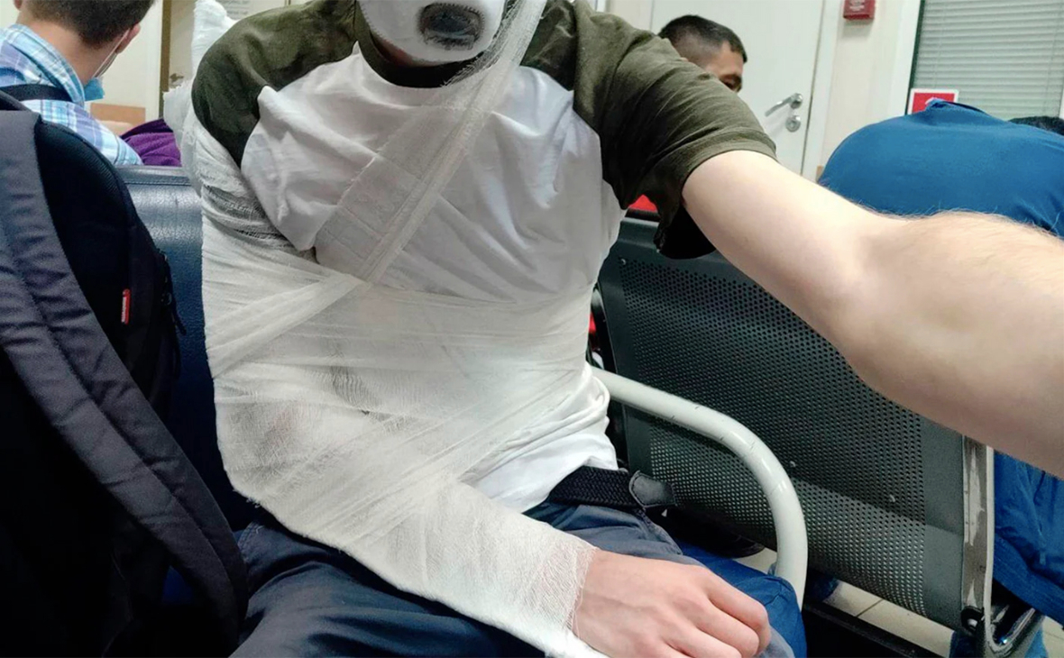 Журналисту сломали руку при попытке вывести с избирательного ...