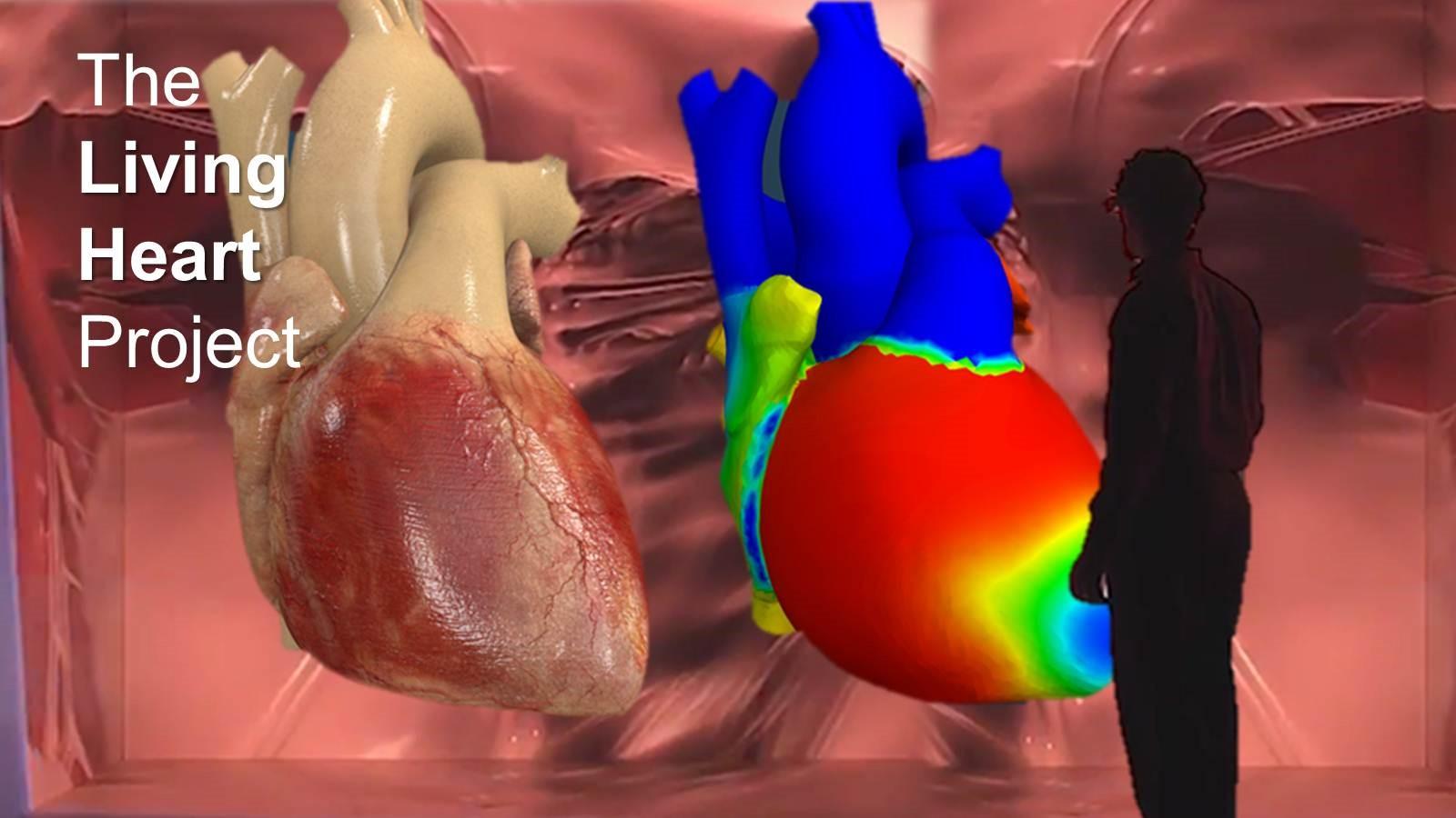 Цифровой двойник сердца