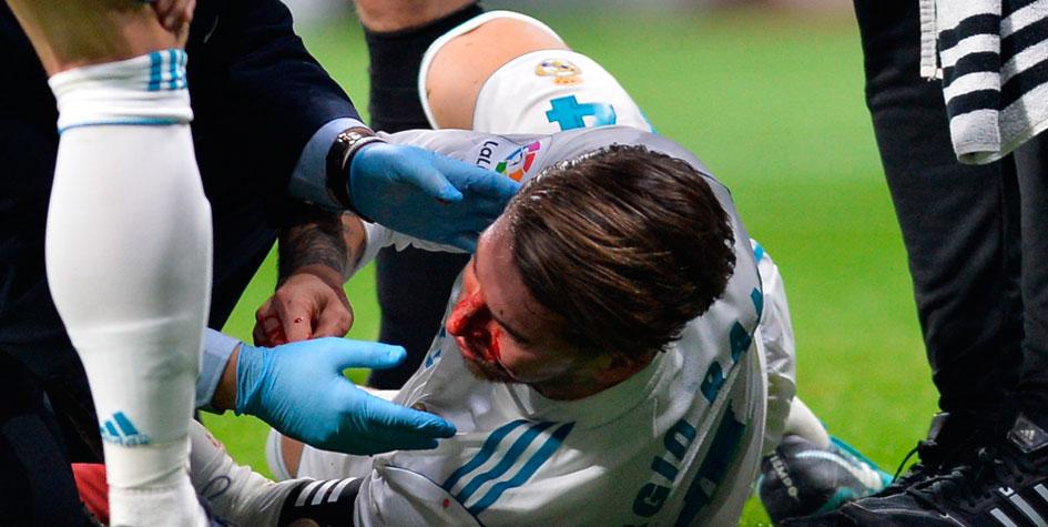 Капитан «Реала» сломал нос в мадридском дерби