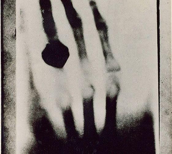 Снимок руки супруги Рёнтгена