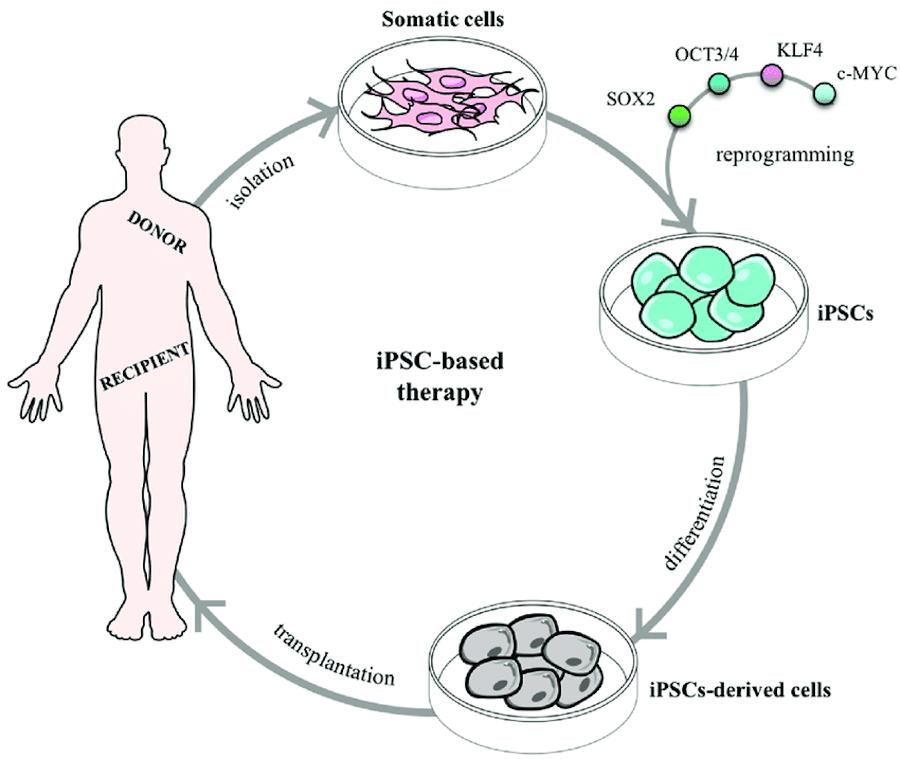 При помощи репрограммирования через факторы Яманаки соматические клетки донора становятся индуцированными стволовыми клетками