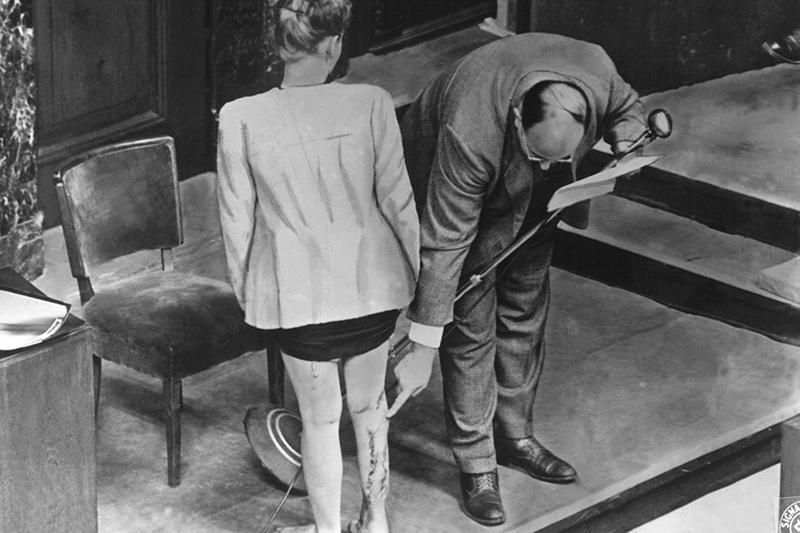 Осмотр шрамов на ноге польской свидетельницы на Нюрнбергском процессекак доказательствопоследствий экспериментов немецких врачей Фрица Фишераи Герты Оберхойзерв женском концлагере Равенсбрюк(Германия)