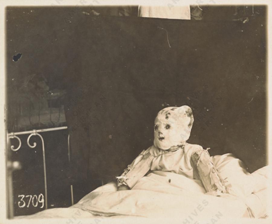 Кукла, изображающая солдата, проходящего лечение