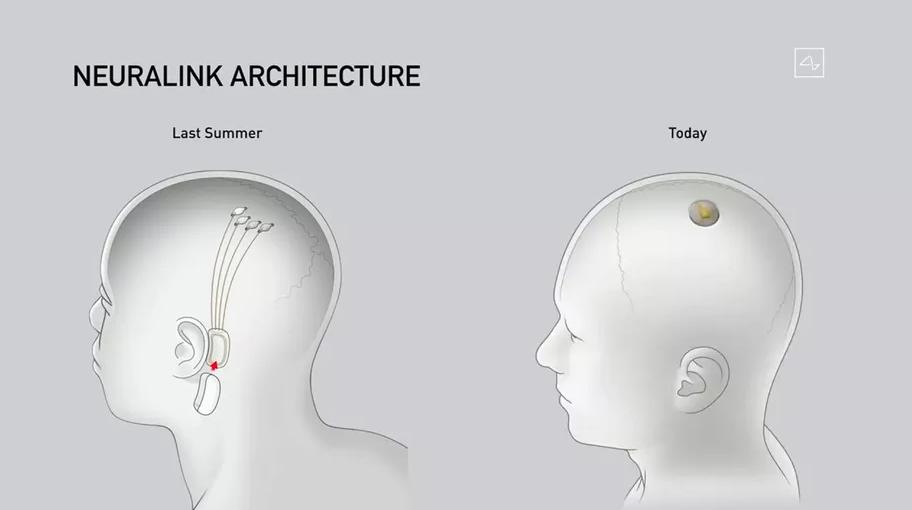 Сравнение старой (слева) версии нейрочипа и новой, которая была представлена на презентации 28 августа. Раньше одним из элементов устройства был внешний передатчик, который размещался за ухом и подключался с помощью нитей к мозгу. Его сочли слишком большим и неудобным. Теперь устройство планируют вживлять под кожу на голове.