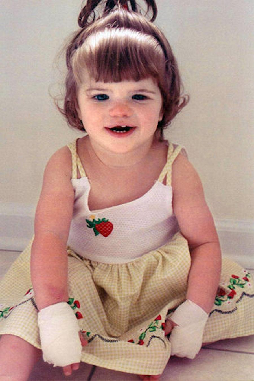Будучи младенцем Эшлин чуть не откусила язык, когда у нее резались зубы