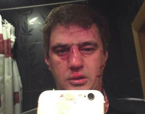 Александр Холодов после избиения