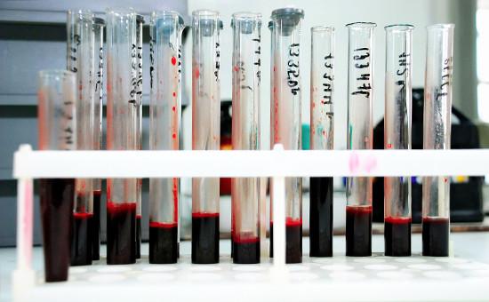 В лаборатории, гдеисследуют кровь наналичие ВИЧ