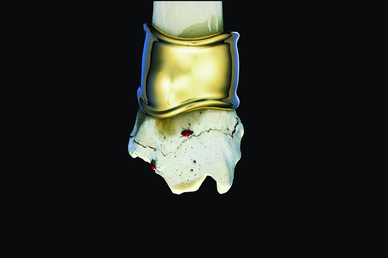 Рекламный снимок браслета Bone, 1980-е