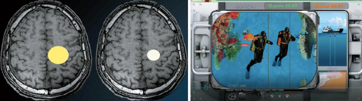 В экспериментах с интерактивной стимуляцией головного мозга могут использоваться разные варианты обратной связи. Слева — пример сравнительно простой: когда испытуемый справляется с поставленной задачей, желтый круг на фоне среза головного мозга становится более ярким и увеличивается в размерах, в случае неудачи — бледнеет и уменьшается. Справа — достаточно сложное представление обратной связи в виде компьютерной игры, в которой два водолаза соревнуются в скорости достижения дна.