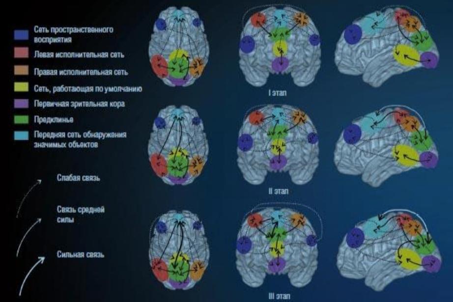 В процессе нейробиоуправления в мозге формируются новые нейронные сети с сильными и слабыми связями. При этом наибольший рост силы функциональных связей отмечен между сетью предклинья и сетью обнаружения значимых объектов. I, II, III — стартовый, промежуточный и финишный этапы эксперимента с двухнедельным интервалом между измерениями.