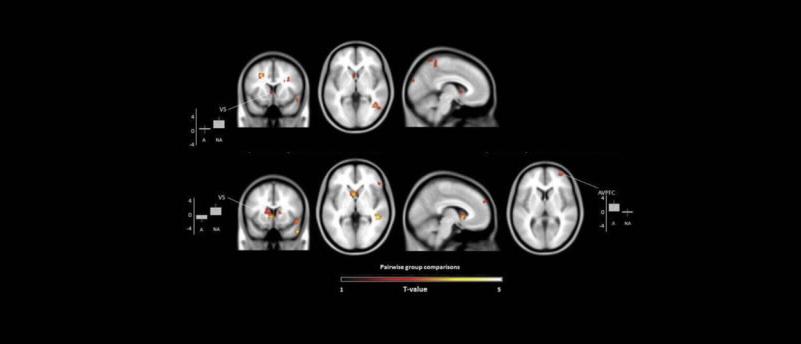 Результаты сканирования мозга во время наблюдения за активностью допаминовой системы вознаграждения в мозге художников