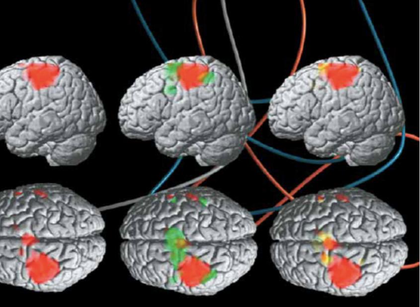 Один из примеров обучения (сагиттальный вид сверху и аксиальный внизу): при реальном сжимании кисти в кулак происходит активация корковых моторных областей; аналогичный процесс идет и при попытке воспроизвести подобный ответ мозга усилием воли. В случае правой руки активируются участки в левой первичной моторной коре — целевом регионе (показаны красным цветом). Зеленым цветом отмечены области, активированные при нейробиоуправлении (приемы волевого управления по усмотрению пациента); желтым — области, активированные при попытках саморегуляции с помощью воображения действия. Видно, что в этом случае начинают работать соседние зоны мозга с небольшим перекрытием целевого региона.