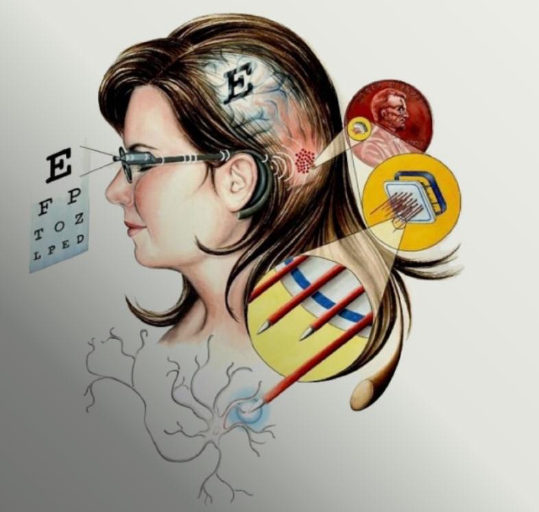 Интракортикальный зрительный протез (WFMA)