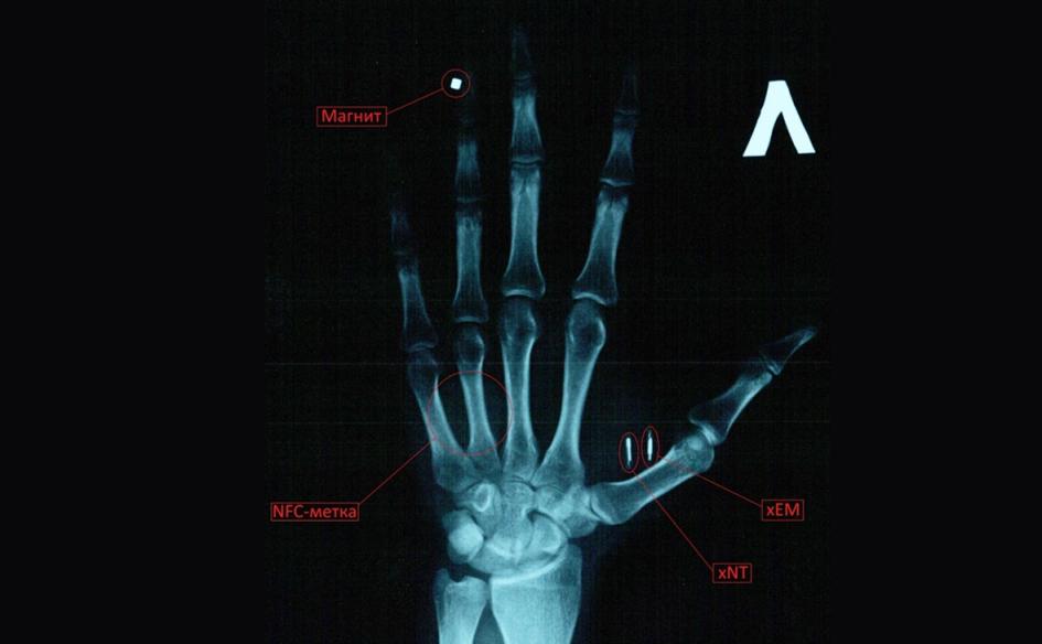 В 2016 году пользователь «Хабра» AndrewRo вживил в свою руку четыре импланта, которые помогают открывать дверь и разблокировать телефон