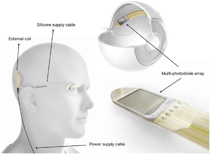 Субретинальный имплантат Alpha AMS компании Retina Implant AG