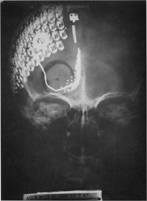 Первый кортикальный имплант