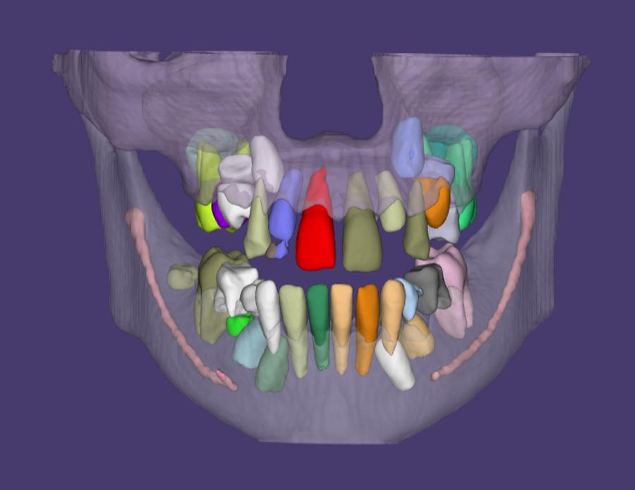 3D-снимок полости рта