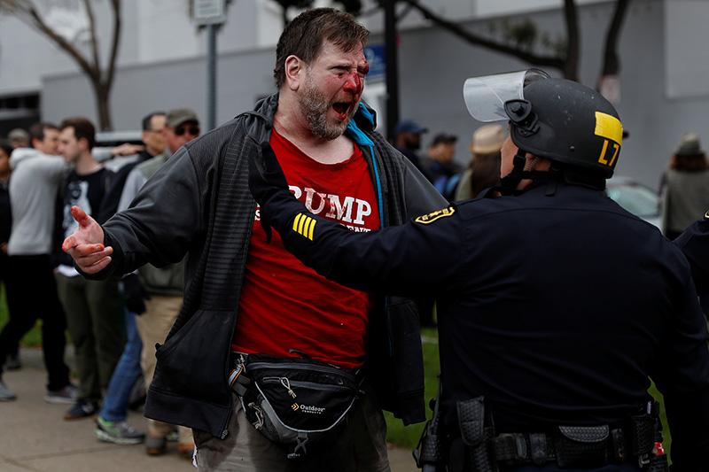Потерпевший сторонник Дональда Трампа.Беркли, Калифорния
