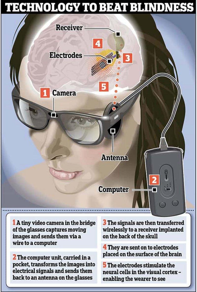 Система кортикальной имплантации Orion компании Second Sight