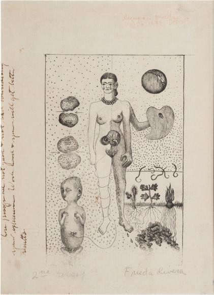 Фрида Кало. Фрида и аборт. 1932