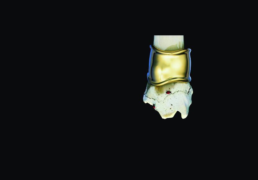 Реклама браслета Bone, Tiffany & Co., 1980-е годы